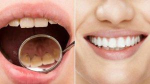 Inilah Cara Untuk Mencegah Karang Gigi Yang Bisa Anda Ketahui