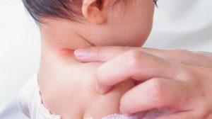 Ruam Merah Pada Bayi Yang Umum Terjadi
